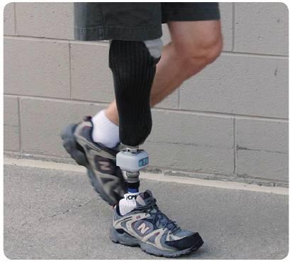 . 智能型义肢骨骼元件系统是一种便携式设备,该设备提供了对步态分