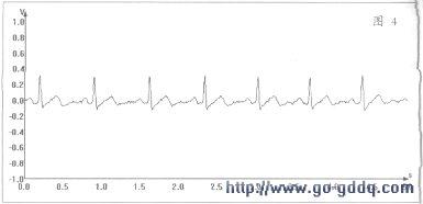 技术资讯 基于msp430fg439的心电检测仪     被采样的ekg信号波形包含
